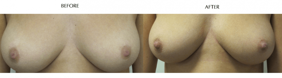 Converted Nipple Correction