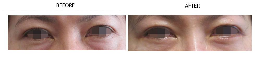 lower-eyelid-eyebags-reduction-g-latest